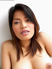 Ning Nara with a mouthful of metal braces strips